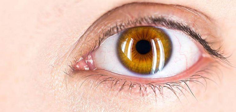 Cataratta, una delle affezioni più comuni dell'occhio