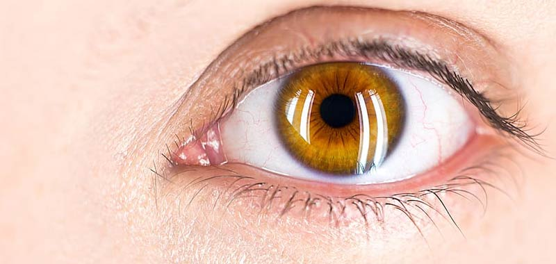 Cataratta una delle affezioni piu comuni de occhio