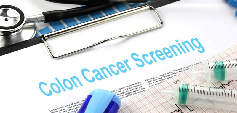 Cancro al colon Screening a partire dai 45 anni
